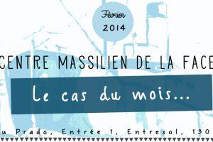 chirurgie-de-la-face-marseille-3
