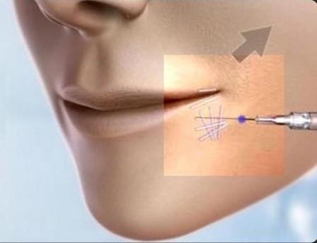 marseille-chirurgie-esthetique-face-cou-3