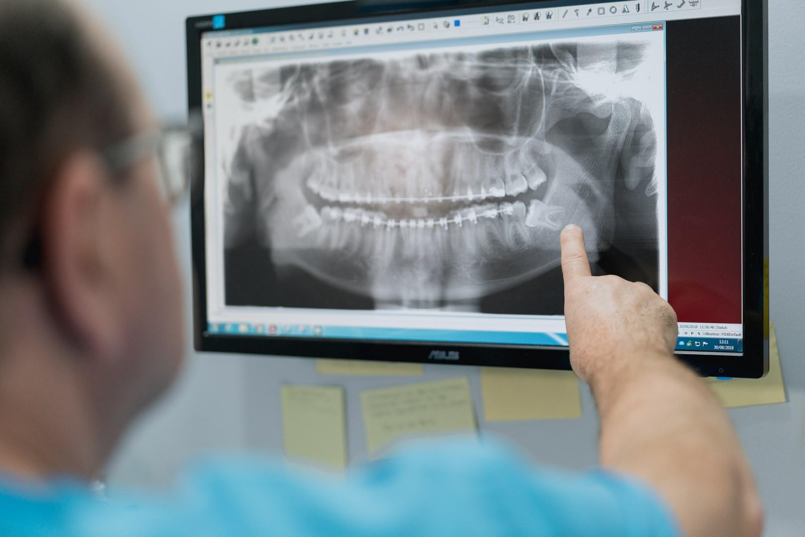 centre massilien de la face chirurgie maxillo-faciale marseille prado pano charles levy